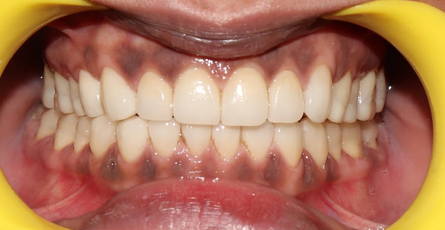 Full Mouth Rehabilitation with EMax Crowns and EMax Onlays.