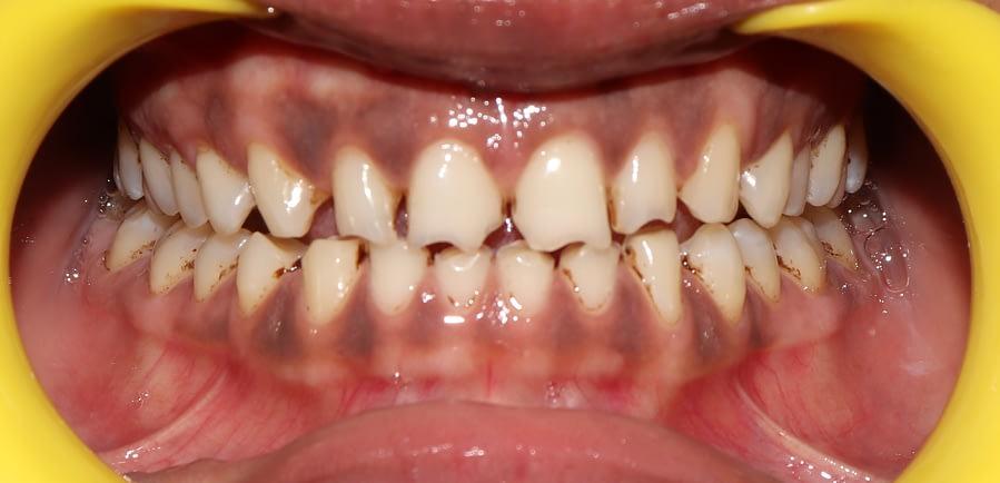 Spacing Between Teeth, Poor Esthetics