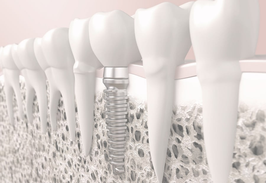 Best centre for Dental Implant noida