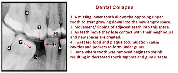 Xray showing consequences of missing tooth.