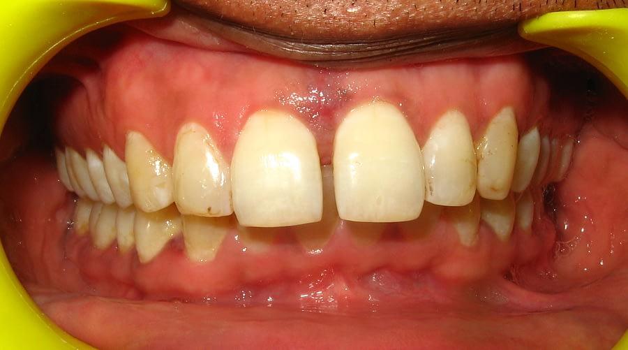 Midline Diastema