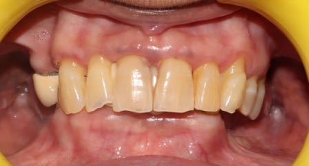 Badly Damaged Dentition with multiple missing Teeth and failing Crowns.